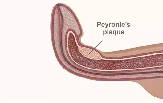 peyronie cuervature penis andropeyronie  PEYRONIE VERLÄNGERUNG Peniskrümmung  extender pene curcatura estensore extensor allungar verge allongement alargamiento 4.jpg